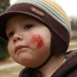 Vročinski krči in alergija